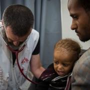 하이단 병원에서 의료 활동 매니저 로베르토 스카이니(Roberto Scaini) 박사가 한 어린 환자의 폐렴, 중등도 영양실조 여부를 검사하고 있다. ⓒ Florian SERIEX/MSF