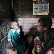 화이자-GSK 합작 ViiV, HIV 감염 아동의 의약품 수급 막아