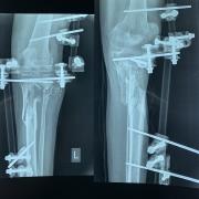 팔레스타인: 가자 (Gaza) 지역 부상자들에게 긴급히 필요한 지원 - 총상 입은 다리에 생겨난 틈 메우기